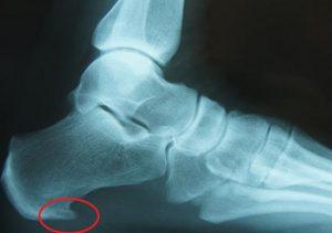 Röntgenfoto met haakje hielpeesplaat